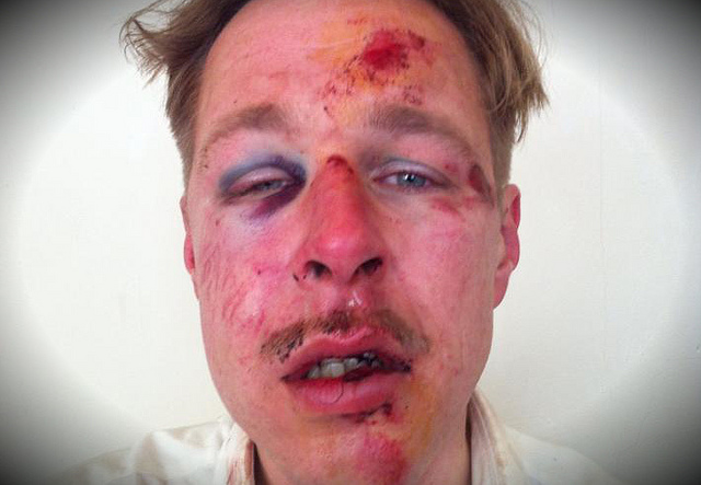 gay man beaten by muslims in paris 11.4.2013