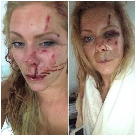 danish woman beaten up 27.12.2014